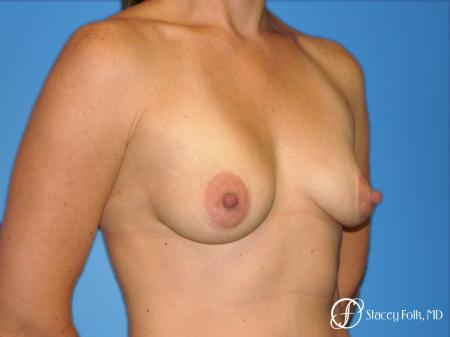 Denver Breast Augmentation with a Breast Lift - Mastopexy 8361 - Before Image 2