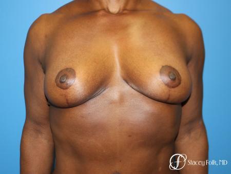 Denver Breast Lift - Mastopexy 7509 -  After Image 1