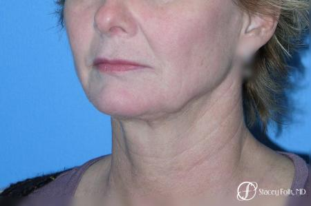 Denver Facial Rejuvenation Face Lift 7121 - Before Image 2