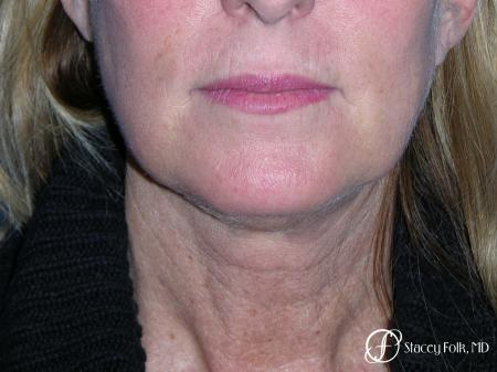 Denver Facial Rejuvenation 7916 - Before Image 1