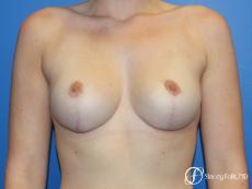 Denver Breast Lift - Mastopexy 10021 - After Image