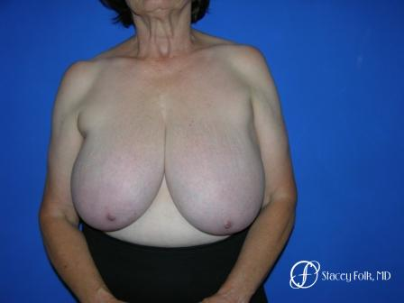 Denver Breast Reduction 37 - Before Image 1