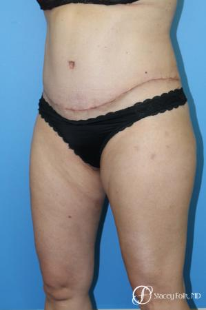 Tummy Tuck (Abdominoplasty) and Liposuction -  After Image 3