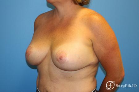 Breast Revision - Removal of Implant, Fat Transfer, Breast Lift (Mastopexy) - Before Image 2