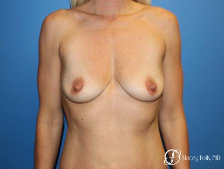 Breast augmentation with breast lift (Mastopexy) - Before Image 1