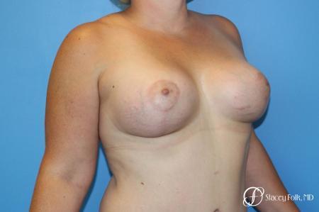 Denver Breast Augmentation Mastopexy 8507 -  After Image 3