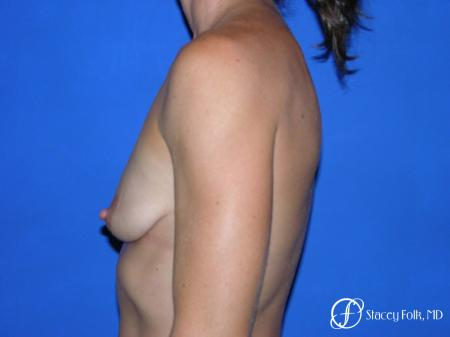 Denver Breast augmentation and breast lift (Mastopexy) 10091 - Before Image 4