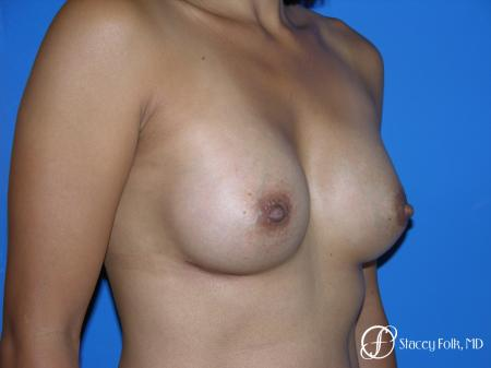Denver Breast Augmentation 3629 -  After Image 3