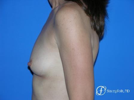 Denver Breast Augmentation 10 - Before and After Image 3