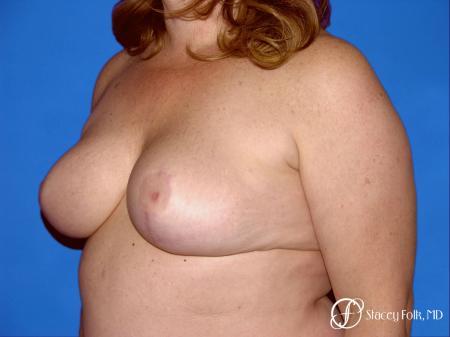 Denver Breast Reduction 54 -  After Image 2