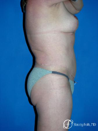 Denver Mommy makeover, breast reduction, abdominoplasty, liposuction 5355 -  After Image 3