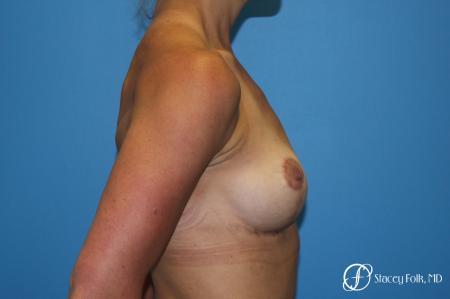 Denver Breast Lift - Mastopexy 8297 -  After Image 3