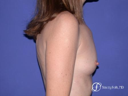 Denver Breast Augmentation 7 - Before and After Image 3