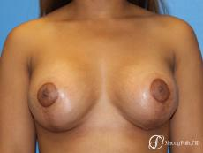 Denver Breast augmentation mastopexy 4815 - After Image