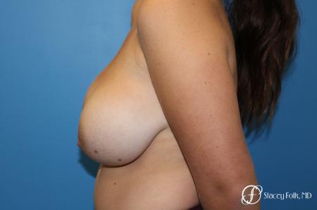Denver Breast Lift - Mastopexy 10021 - Before Image 3
