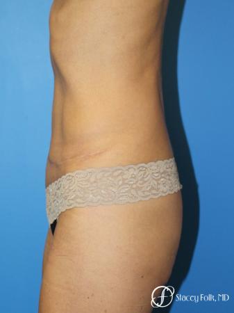 Denver Tummy Tuck Abdominoplasty 5609 -  After Image 3