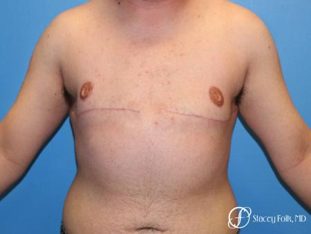 Denver FTM Top Surgery 5089 -  After Image 1