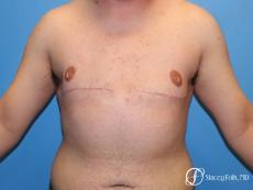 Denver FTM Top Surgery 5089 - After Image