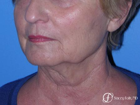 Denver Facial Rejuvenation Face Lift, Fat Injections, and Laser Resurfacing 7120 - Before Image 2