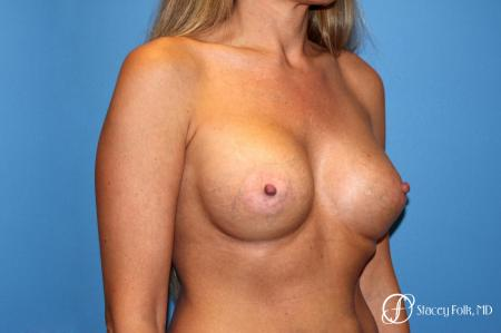 Denver Breast Augmentation 3626 -  After Image 3