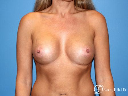 Denver Breast Augmentation 3626 -  After Image 1