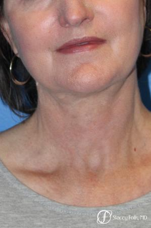 Denver Facial Rejuvenation Facelift, Blepharoplasty, Fat Transfer, Laser Resurfacing 10350 -  After Image 2