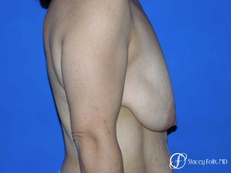 Denver Breast Lift - Mastopexy 7982 - Before and After Image 3