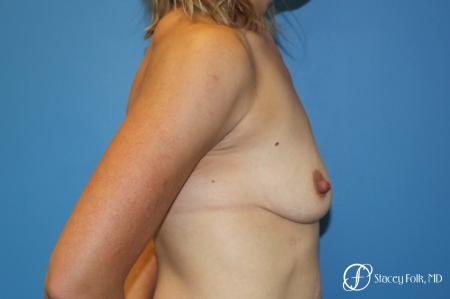 Denver Breast lift and Augmentation 7850 - Before and After Image 3
