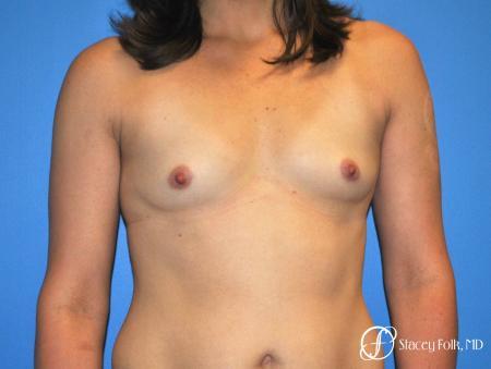 Denver Breast augmentation 7111 - Before Image 1