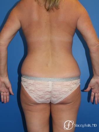 Denver Liposuction 10267 - Before Image