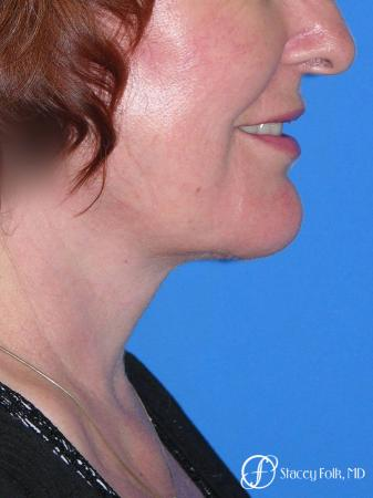 Denver Facial Rejuvenation Face lift, Fat Injections, Laser Resurfacing 7133 - After Image