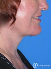 Denver Facial Rejuvenation Face lift, Fat Injections, Laser Resurfacing 7133 - After Image
