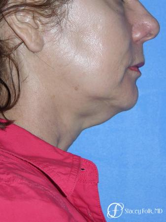 Denver Facial Rejuvenation Face Lift and Fat Injections 7117 - Before Image 1