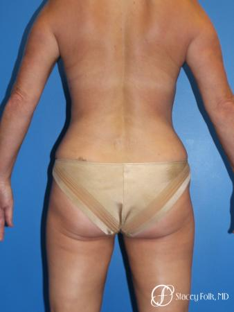 Denver Liposuction 10267 - After Image