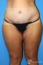 Denver Body Lift belt lipectomy, liposuction, mastopexy 5935 - After Image