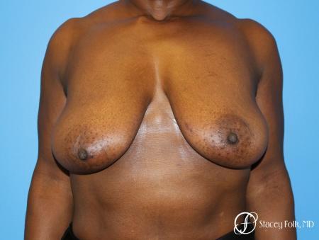 Denver Breast Lift - Mastopexy 7509 - Before Image 1