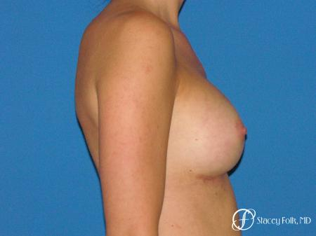 Denver Breast Augmentation 4779 -  After Image 3