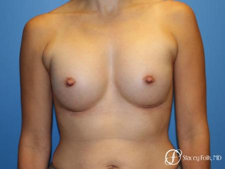 Denver Breast augmentation using textured anatomical implants 5849 - After Image