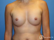 Denver Breast augmentation using textured anatomical implants 5849 - After Image