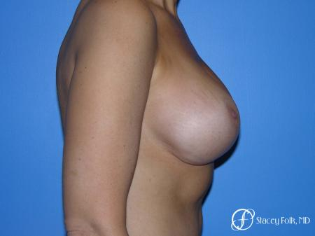 Denver Breast Revision 10094 - Before and After Image 5
