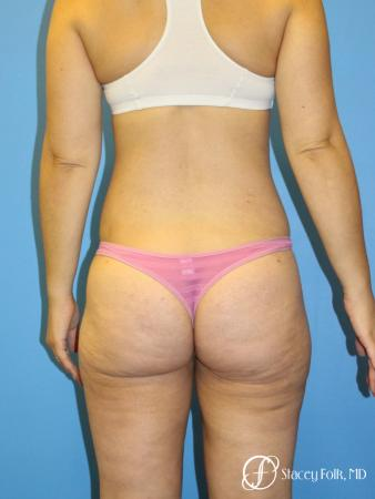 Denver Liposuction 8512 - After Image