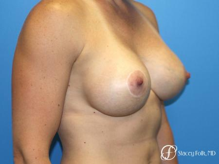 Denver Breast Augmentation with a Breast Lift - Mastopexy 8361 -  After Image 2