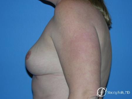 Denver Breast Reduction 4790 -  After Image 5