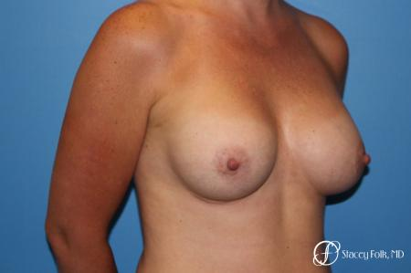 Denver Breast augmentation using Sientra textured anatomic implants 5578 -  After Image 2
