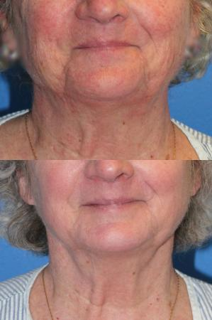 Denver J-Plasma Face Laser resurfacing with J-Plasma 10864 - Before Image 1
