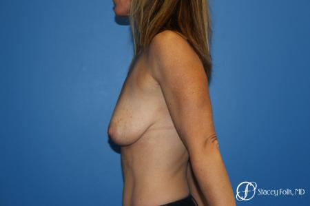 Breast Augmentation With Lift: Patient 1 - Before and After Image 3