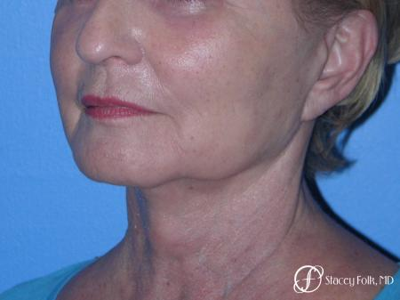 Denver Facial Rejuvenation Face Lift, Fat Injections, and Laser Resurfacing 7120 -  After Image 2