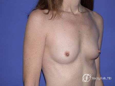 Denver Breast Augmentation 7 - Before Image 2