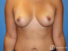 Denver Breast reduction 5842 - After Image