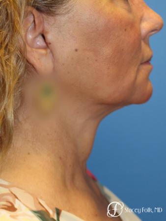 Denver Facial Rejuvenation Face Lift, Fat Injection, Laser Resurfacing 7123 -  After Image 1